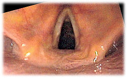 Vocal Cords (looking down the trachea or windpipe)